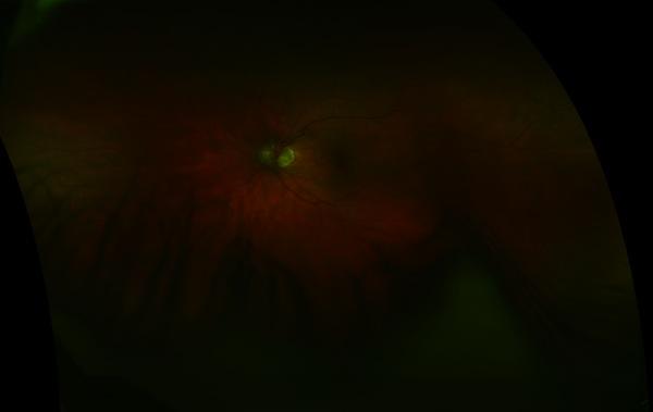 Optomap Left Eye